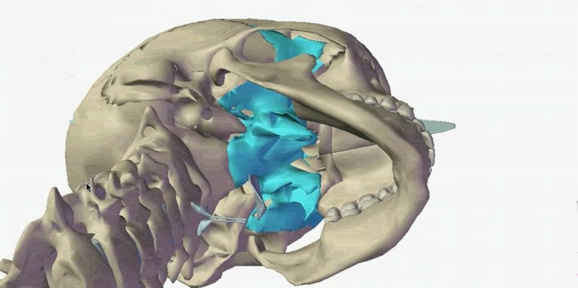 Mouvement craniosacrale